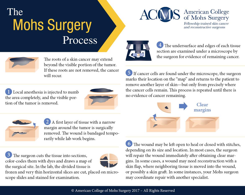 Mohs Surgery Process