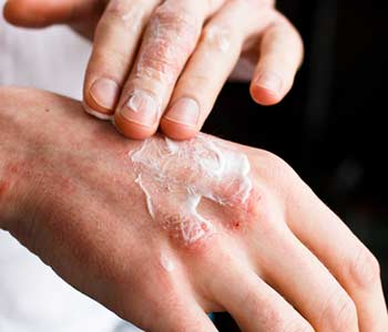 When to See Your Dermatologist for Psoriasis in Alexandria, VA area Image 2