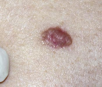 Basal Cell Carcinoma Symptoms Causes Treatment in Alexandria area
